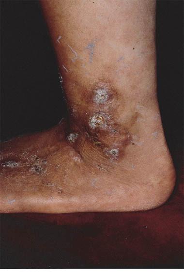 Livedo reticularis and livedoid vasculitis responding to