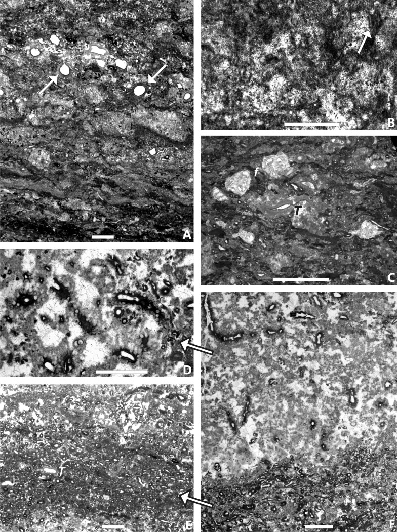 Foraminiferan-calcimicrobial benthic communities from Upper ...