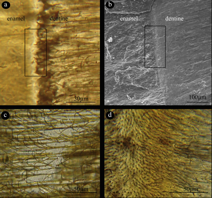 Histology of teeth and tooth attachment in titanosaurs (Dinosauria ...
