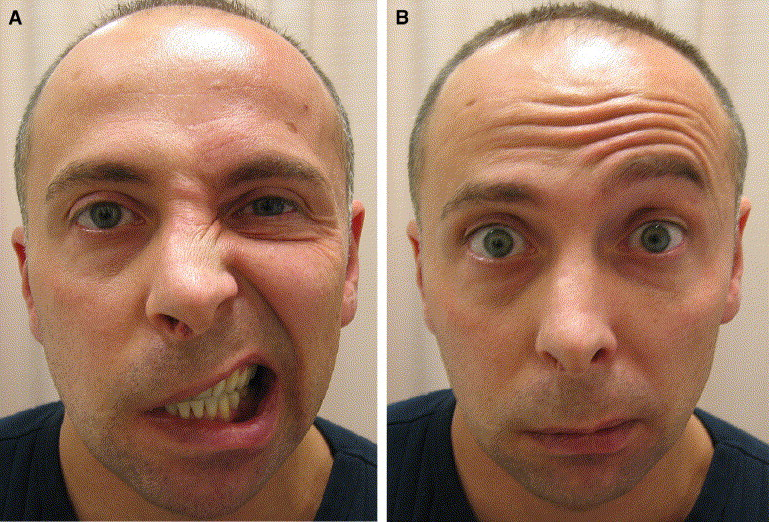 Image result for facial nerve palsy