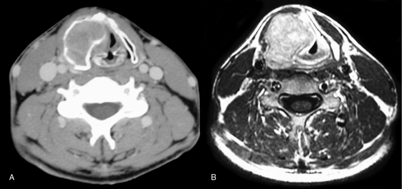 Giant cell tumor of the larynx: a case report and review of the ...