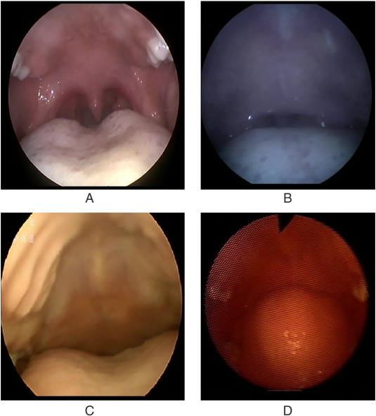 Pediatric Airway Study Endoscopic Grading System For Quantifying