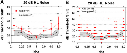 Tone-in-noise detection deficits in elderly patients with