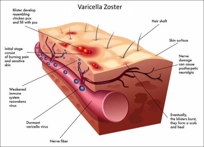 In herpes der scheide zoster Genitalherpes: Informationen