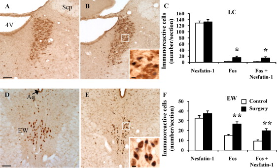 Abdominal Surgery Activates Nesfatin 1 Immunoreactive Brain Nuclei