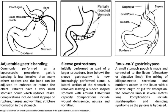 The Effect Of Bariatric Surgery On Gastrointestinal And Pancreatic