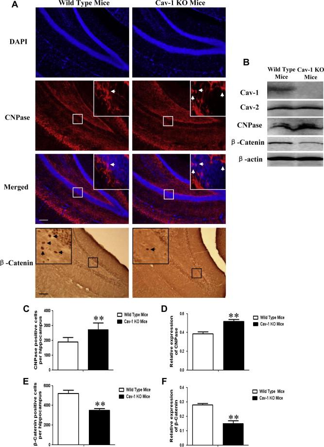 Caveolin-1 inhibits oligodendroglial differentiation of