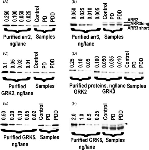 Arrestins and two receptor kinases are upregulated in