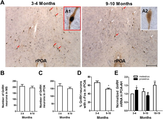 Aging-related changes in RP3V kisspeptin neurons predate the