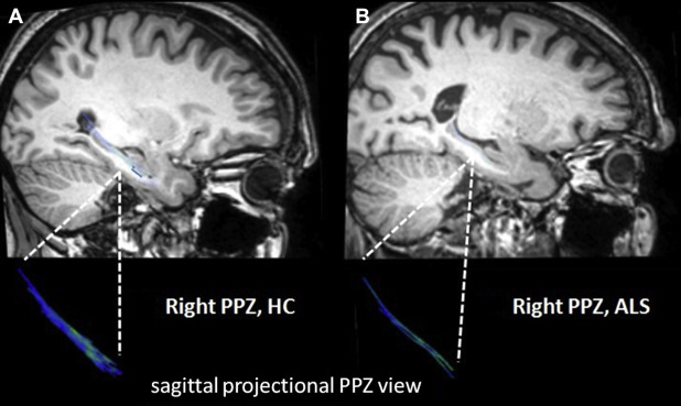 Memory-related white matter tract integrity in amyotrophic lateral