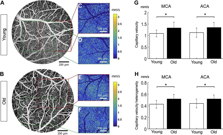 Aging-associated changes in cerebral vasculature and blood