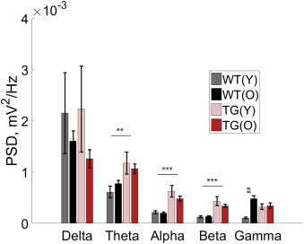 Increased cortical beta power and spike-wave discharges in