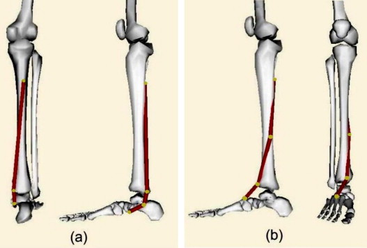 Dynamic Simulation Of Tibialis Posterior Tendon Transfer In The