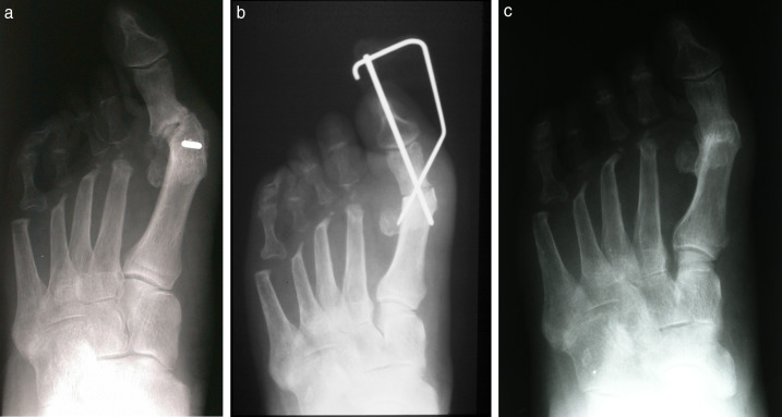 Use of 1st metatarsophalangeal joint fusion for repair of