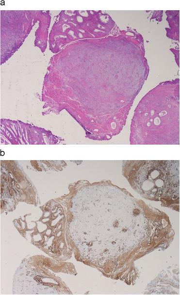 mastocitos y prostatitis