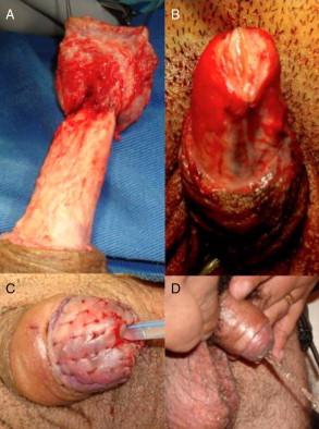 penectomia tecnica quirurgica
