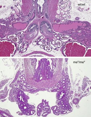 Anatomía de la próstata en ratones motheaten viable (mev) con ...