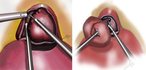 ultrasonido suprapúbico del hospital de próstata gemelli de la