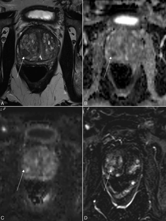 próstata magnética multiparamétrica en florencia 2