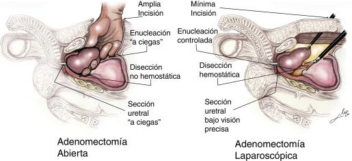 intervención endovascular próstata brescia español