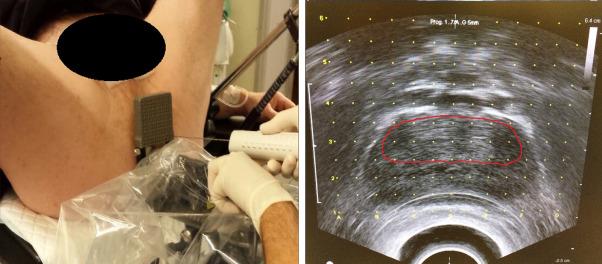 examen de fusión de próstata híbridos