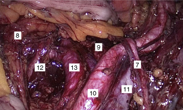 cáncer de próstata y número de pint