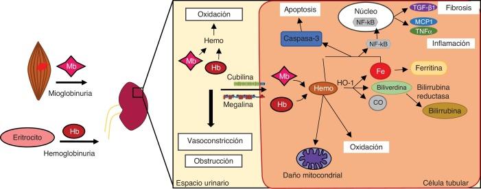 fisiopatología aguda de la túbulo necrosa de la diabetes