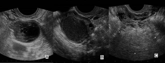 ecografía de próstata via abdominal