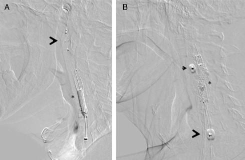 Pautas de revascularización de la arteria carótida para la hipertensión
