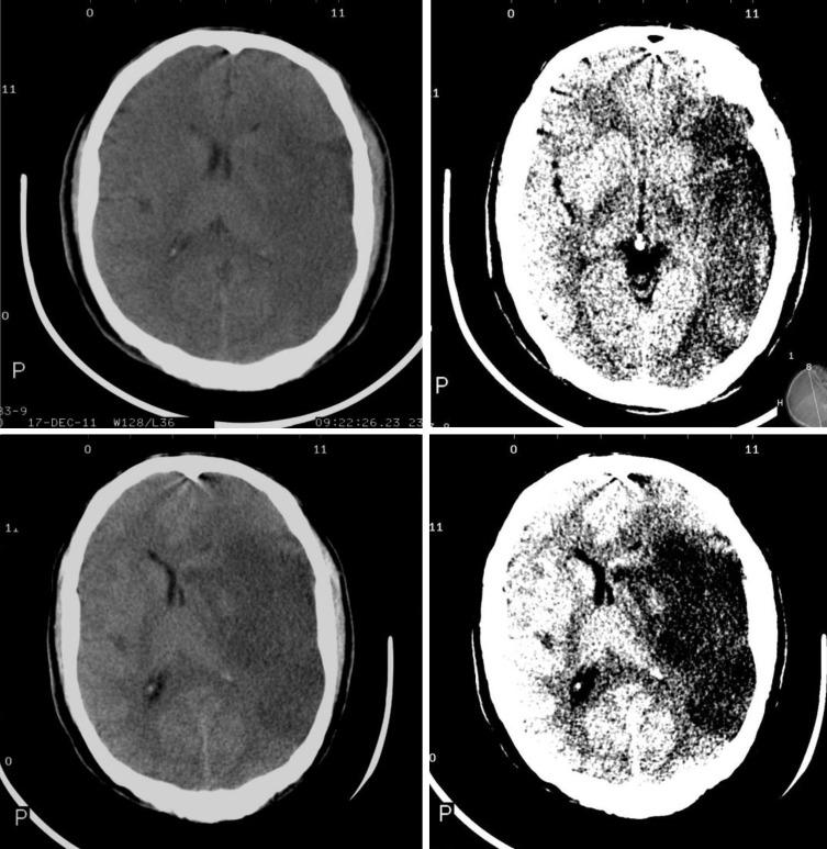 Infarto hemisférico maligno de la arteria cerebral media