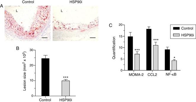activación de nrf2 y diabetes