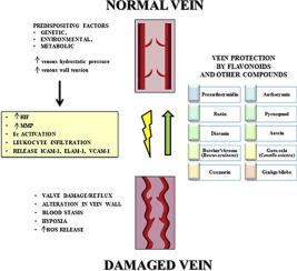 varicoză care poate și nu poate comentarii despre laser varicose