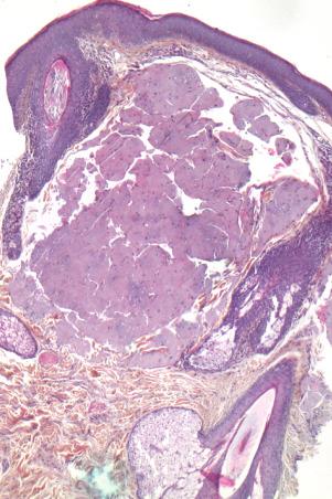 Milium colloïde : une observation associée à une trichinose ...