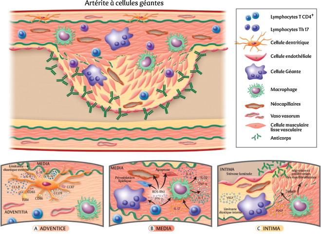Physiopathologie de l'artérite à cellules géantes ...