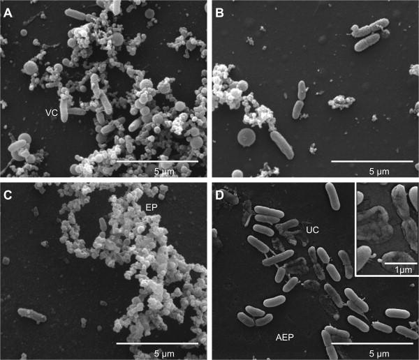 Pseudomonas aeruginosa produces secondary metabolites that