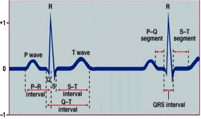 ECG signal processing for abnormalities detection using