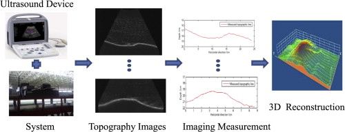 B-mode ultrasound imaging measurement and 3D reconstruction of