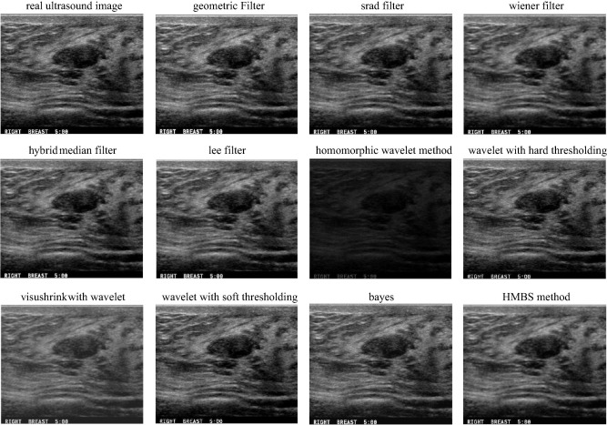 Speckle Reduction In Breast Cancer Ultrasound Images By Using Homogeneity Modified Bayes Shrink Sciencedirect