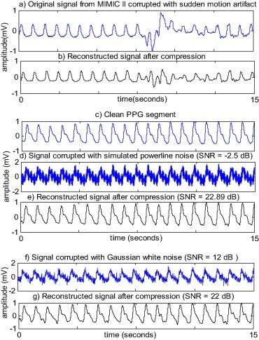 Adaptive Band Limit Estimation based PPG data compression