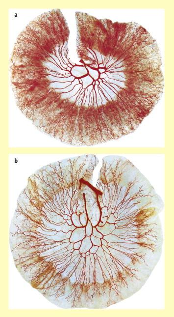 Anatomy of the small intestine (jejunum and ileum) - ScienceDirect