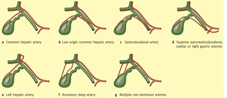 Surgical Anatomy Of Laparoscopic Cholecystectomy Sciencedirect