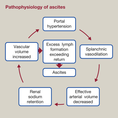 portal hypertension and ascites sciencedirect