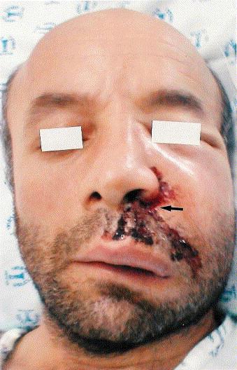 Penetrating grease gun injury in the face - ScienceDirect