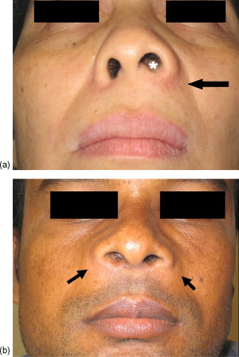 Diagnosis from facial features