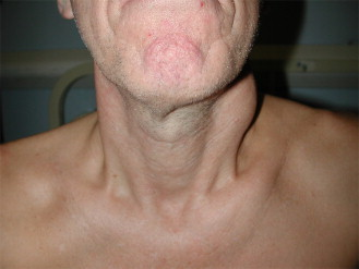 Simultaneous lymphoma and squamous cell carcinoma presenting