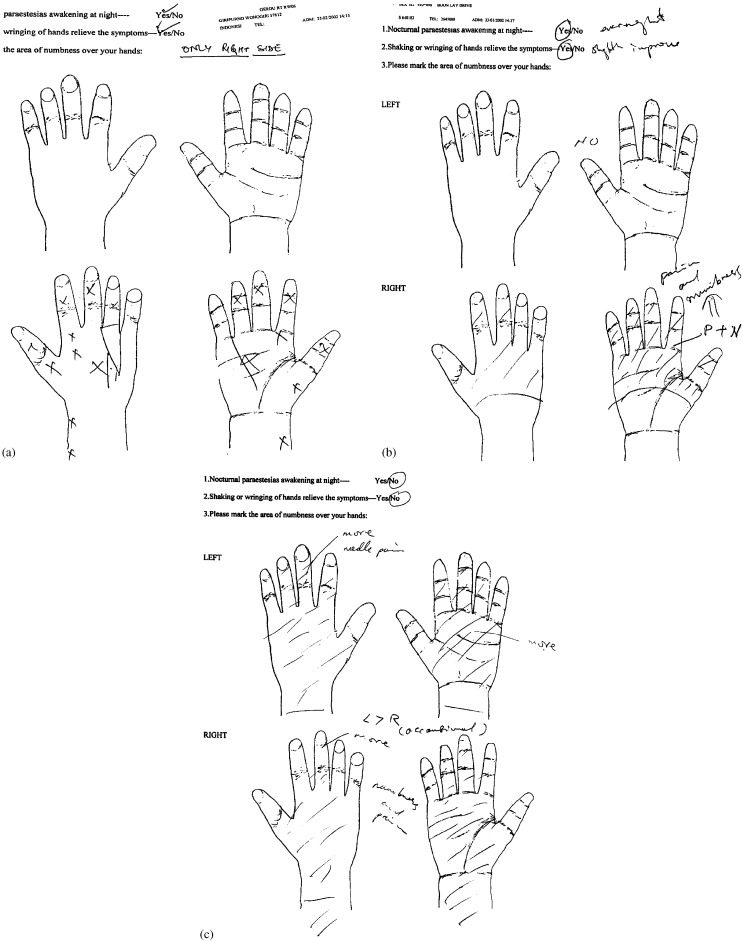 Diagram Of Hands