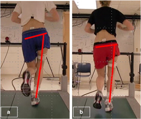 Mirror gait retraining for the treatment of patellofemoral pain in ...
