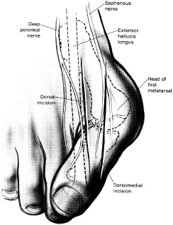 hallux valgus sciencedirect Ankle Tendon Anatomy Diagram download full size image