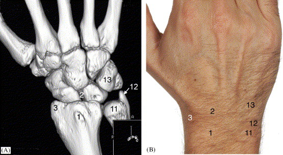 i) Examination of the wrist—surface anatomy of the carpal bones ...