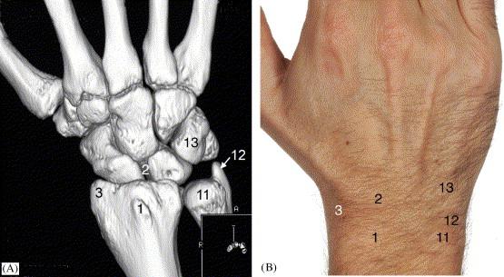 I Examination Of The Wristsurface Anatomy Of The Carpal Bones